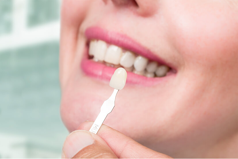veneers dental services in Panania