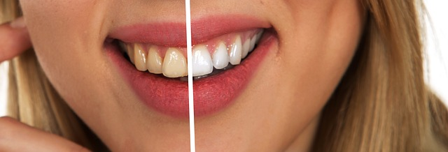 teeth whitening dental services